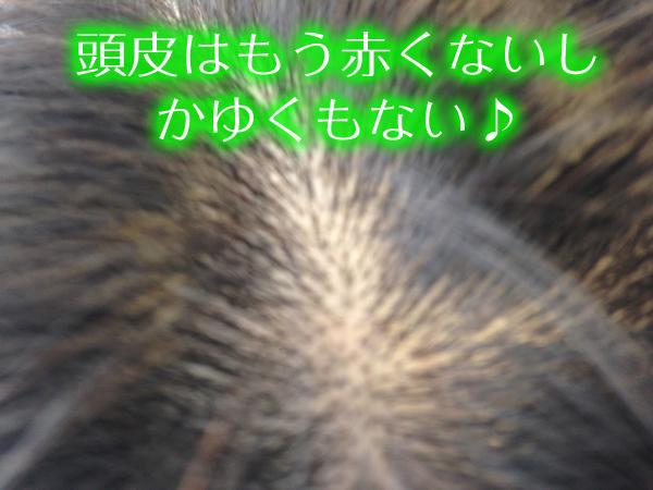 すこやか地肌で脂漏性皮膚炎が治ったアフター写真.jpg